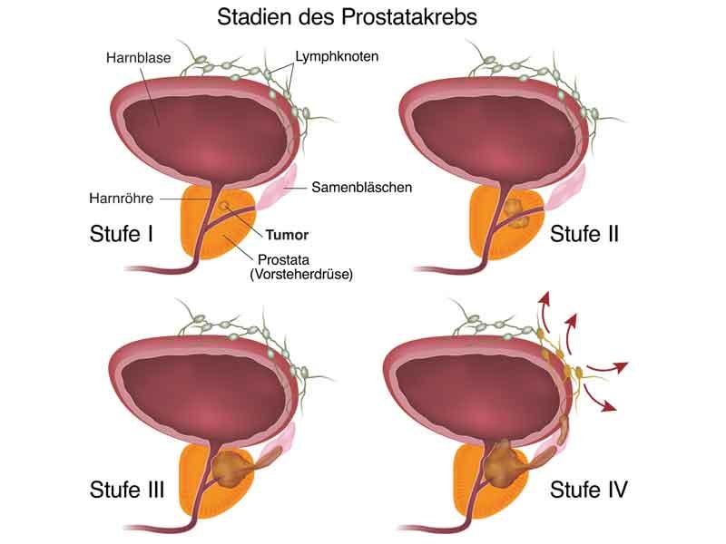 Prostatakrebs | STZ Freiburg - Zentrum für Strahlentherapie