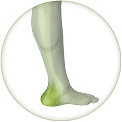 Fersensporn / Achillessehnenreizung